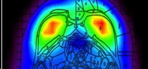 BBC: Wearable PET scanner maps rat brains in real time